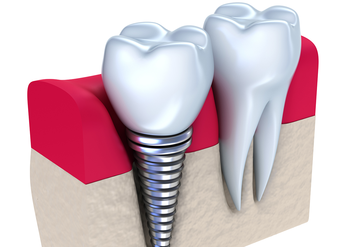 Everything you need to know about Dental Implants for missing teeth